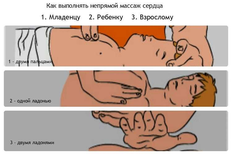 Отравление выхлопными газами! Симптомы, лечение!